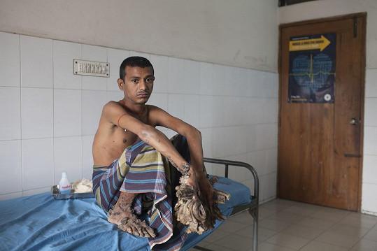 Z Bangladéše pochází i Abul Bazadar trpící stejným onemocněním.