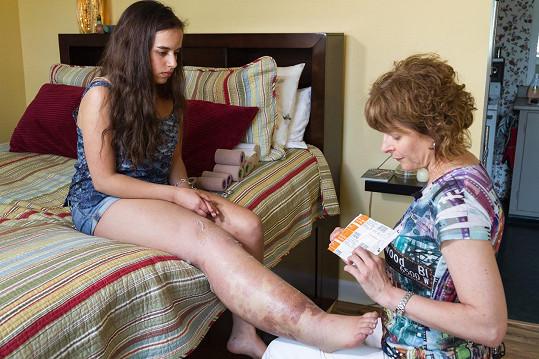 Dívka podstupuje zatím velice úspěšnou léčbu s paní terapeutkou.