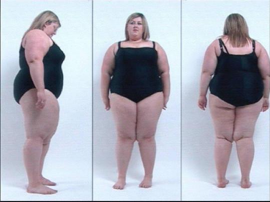 Michelle McManus vážila 146 kilogramů.
