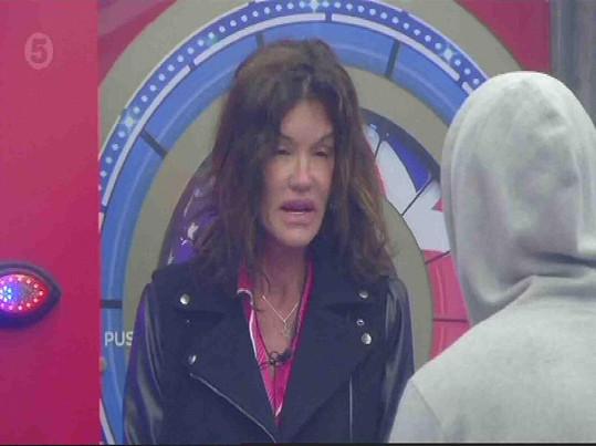 Janice Dickinson je alergická na včelí bodnutí.
