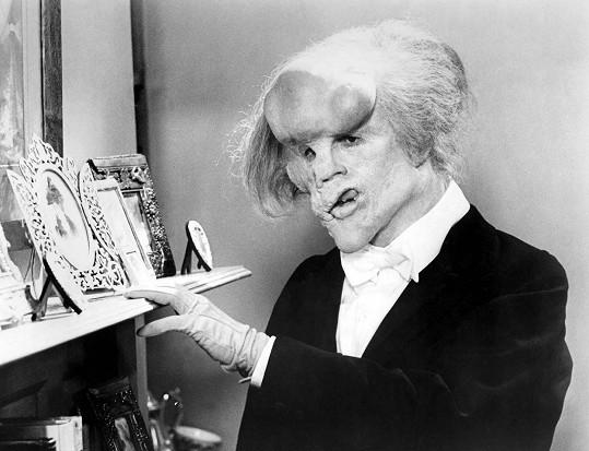 Ve filmu Sloní muž (1980) ho hyzdila maska.