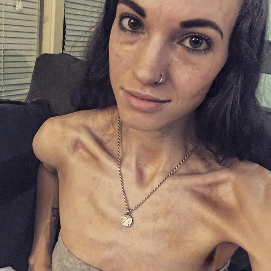 O mladé Američance si v nemocnici mysleli, že trpí rakovinou.