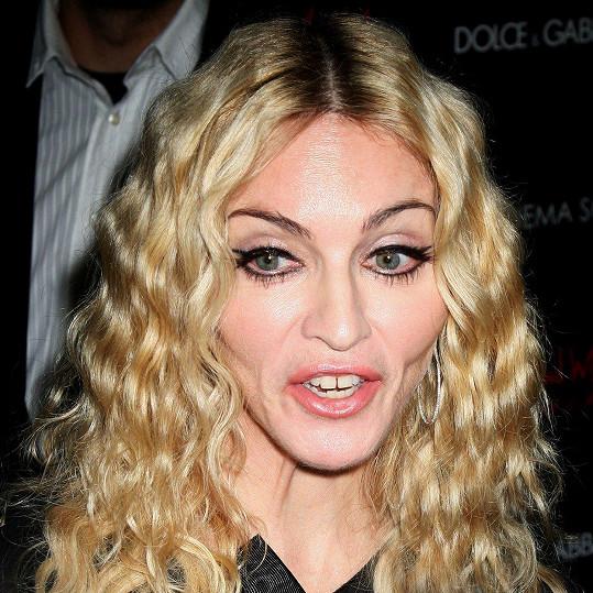 Madonna je svou škvírkou mezi zuby pověstná.