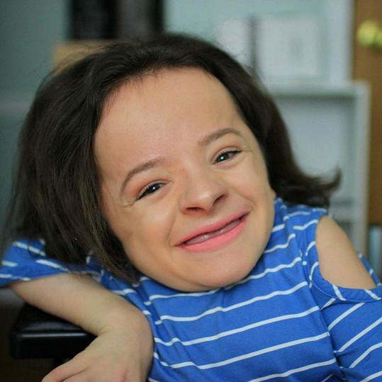 Michaela Davert (18) z Michiganu měří díky vrozenému onemocnění pouhých 76 cm.