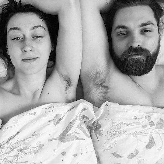 V rozhodnutí přestat se holit má plnou podporu manžela. Ten prý nechápal, proč to dělá, když se jí pak kůže zanítila.