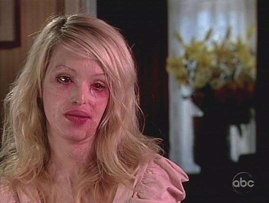 V roce 2010 se napadená modelka odhodlala vystoupit v televizi.