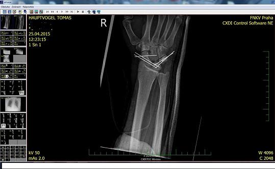 Rentgen Tomášova zápěstí
