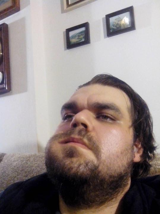 Jeho tvář po operaci v detailu