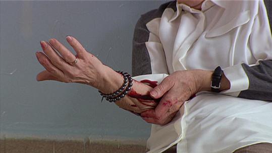 Ruka byla celá od krve.