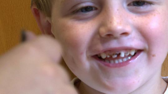 Několik předních zubů má úplně černých.