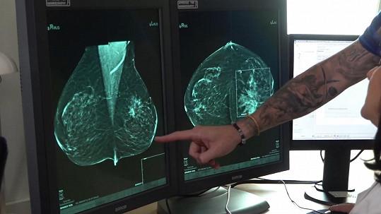 Na ultrazvuku