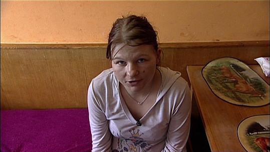 Tato paní nemá žádné hygienické návyky. Je jí 26 let.