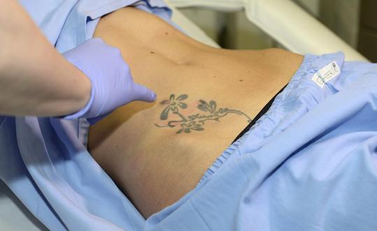 Tetování má od osmnácti let, nyní se ho zbavuje.