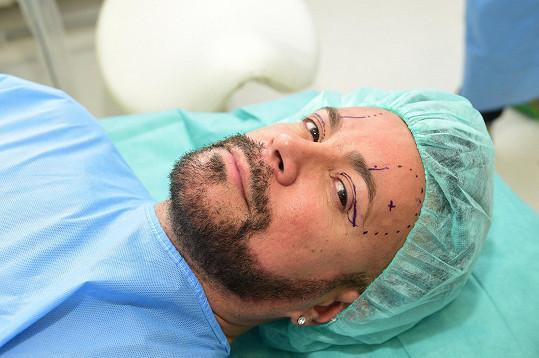 Osmanyho čeká spousta práce, a proto se rozhodl ulevit svým očím za pomoci skalpelu.