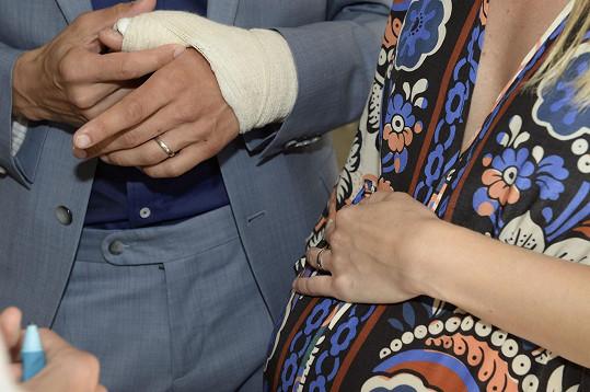 Detail na ruku v sádře