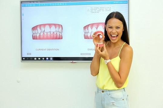 Monika Leová chce srovnat zuby