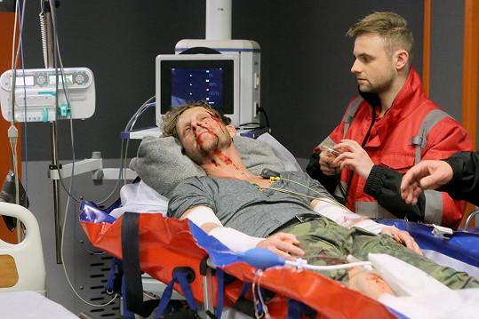 Skončil ve vážném stavu v nemocnici.