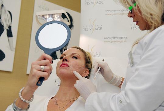 Niťové liftingy pomáhají oddálit proces stárnutí a výkony plastického chirurga v budoucnu. Řeší propadající se a pokleslé tkáně v obličeji jako tváře, podbradek či obočí, které dělají člověka starším a vytváří smutný až unavený výraz v obličeji.