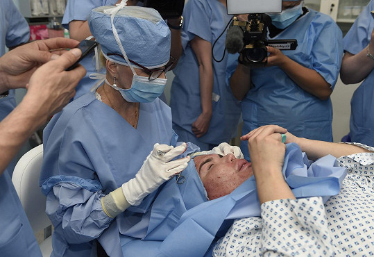 Lékaři se mu snažili zlepšit stav obličeje.