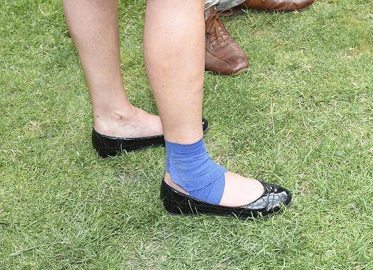 Kvůli zranění nohy musí nosit stahovací obvaz.
