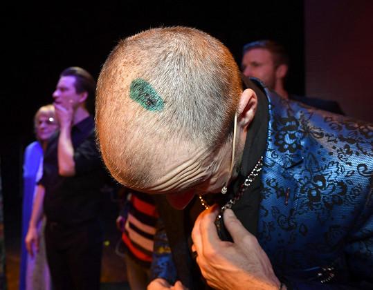 Herec si krátce před premiérou v divadle rozseknul hlavu.