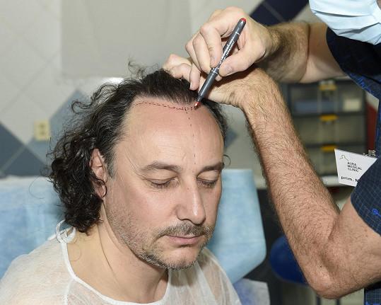 Marianovu hlavu bude zdobit nových tisíc vlasů.