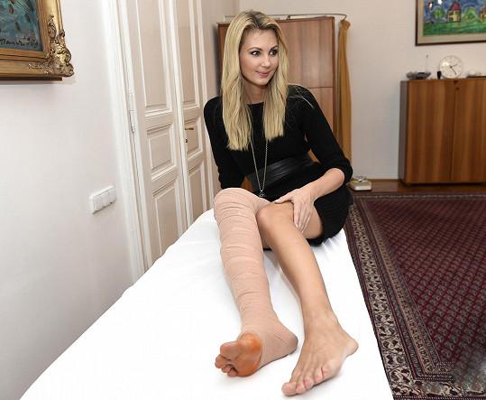 Na druhé noze absolovovala pouze sklerotizaci.