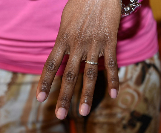 Ondřej nasadil Doris zásnubní prsten.