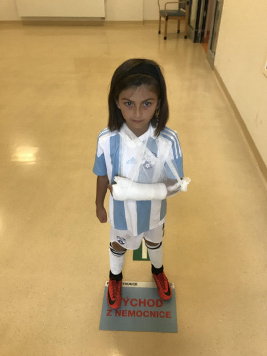 Sedmiletá holčička si na fotbale zlomila ruku a tak mají v rodině trošku komplikované období.