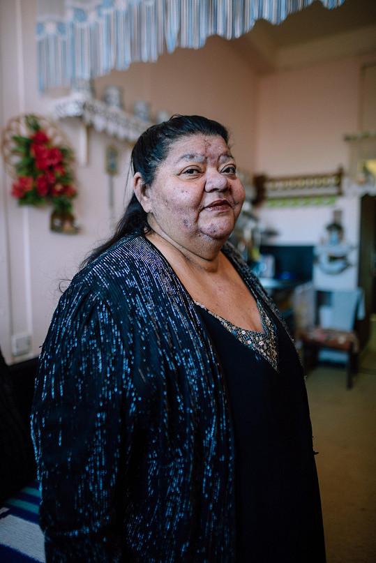 Věra Bílá zemřela v úterý 12. března 2019.