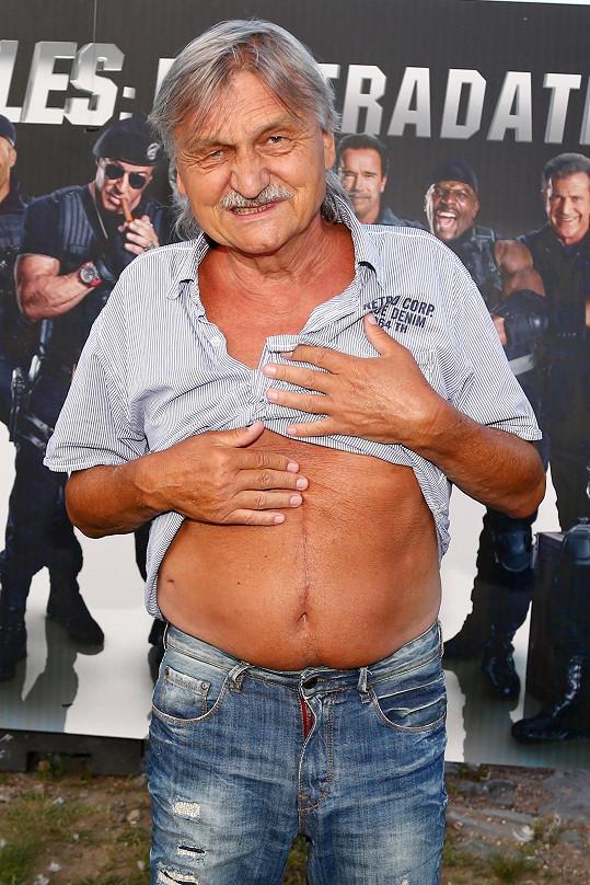 Pavel Soukup ukázal jizvu po operaci dvanácterníku.