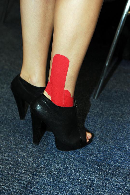 Šlo o tejpy, které jí léčí poraněnou nohu.