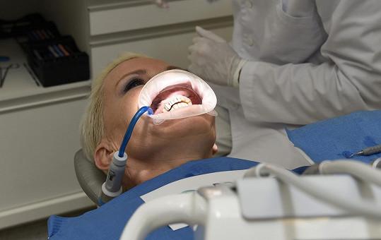 Tady už jí stomatolog odstanil staré fazety.