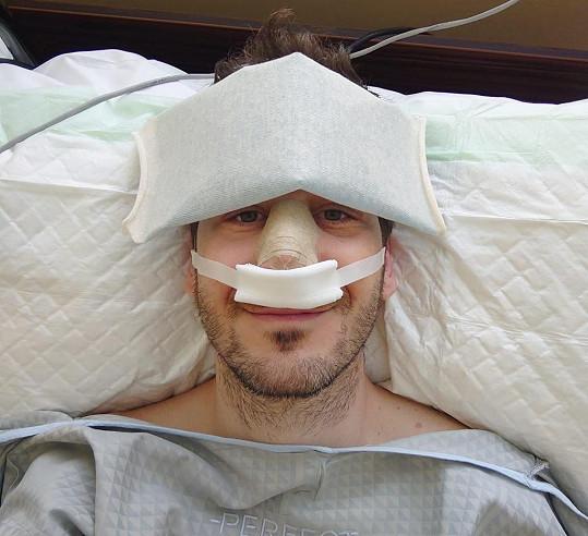 Petr je po operaci nosu.