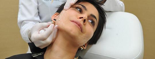 Kontury obličeje lékařka zpevnila speciálními bionitěmi, které se v budoucnu rozpustí.