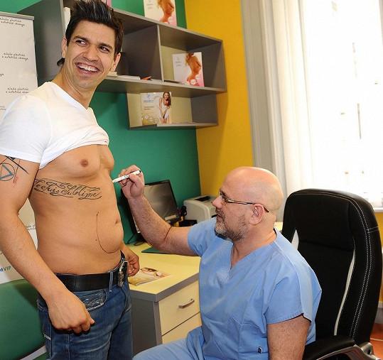 Lékař nejprve zakreslil, kde je z břicha potřeba tuk odsát.