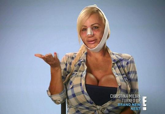 Lacey Wildd si nechala upravit obličej a genitálie.