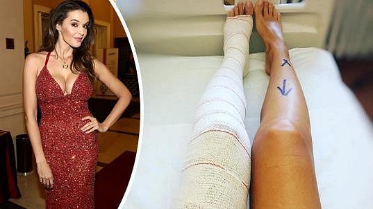 Náročná operace kolene.