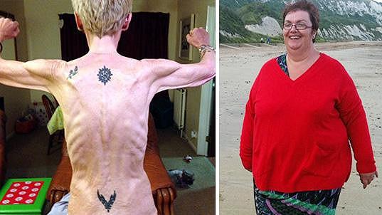 Od morbidní obezity k anorexii...