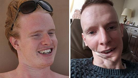 Lorenzo už si s rakovinou a potažmo leukémií užil své.