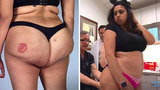 Connie se stala obětí zpackané operace.