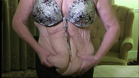 Tinu Malone trápí povislá kůže.
