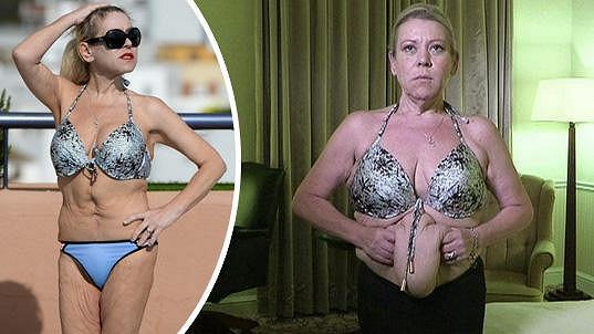 Tina se po tuku zbavila i přebytečné kůže.