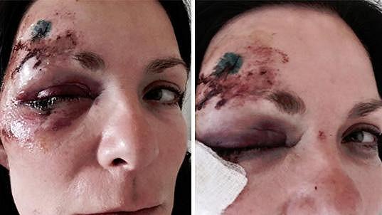 Anna K. ukázala rozbitý obličej.