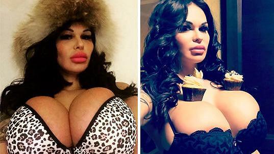 Rita Kern chtěla mít prsa přirozeného vzhledu...