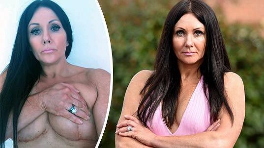 Janey si operací nepolepšila.