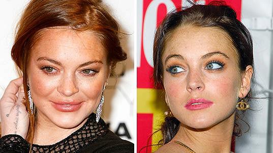 Lindsay Lohan chtěla mít smyslnější rty...