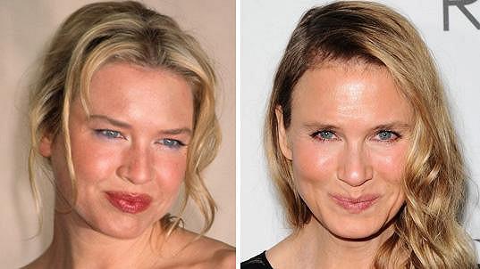Před a po... Slavné herečce ukradli před pár lety tvář. Definitivně.