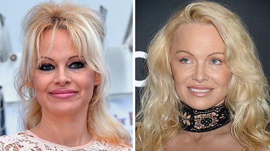Takhle se změnila Pamela Anderson.
