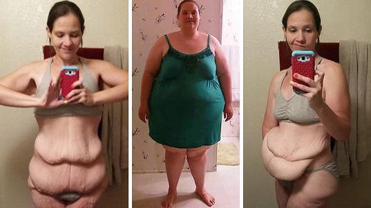 Celia zhubla metrák a zůstala jí přebytečná kůže.